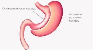 Метастазы рака желудка лечение