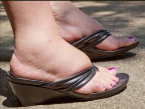 Почему у онкобольных отекают ноги