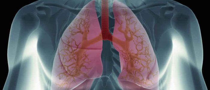 При раковых заболеваниях какой анализ крови