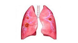 Метастазы рака молочной железы