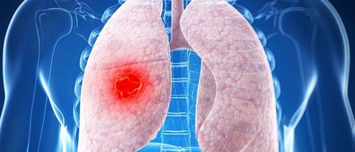 Периферический рак легкого умеренной дифференцировки: стадии и классификация заболевания, диагностические исследования, лечебные мероприятия, шансы на полную реабилитацию