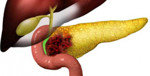 Рак желчного пузыря 4 стадия
