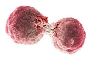 Плоскоклеточный рак шейки матки прогноз лечение