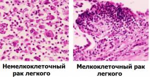 Мелкоклеточный рак легкого 4 стадия прогноз