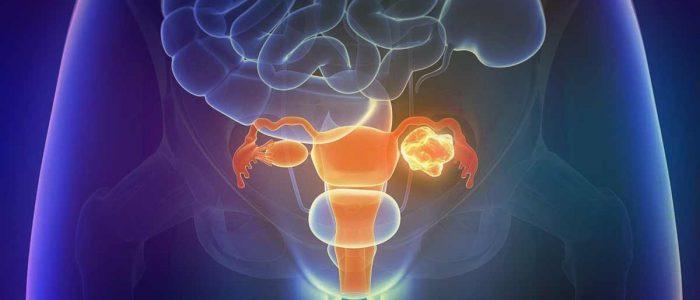 Что такое тератома левого яичника 17